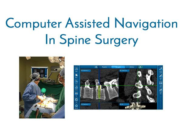 Computer Assisted Spine Surgery